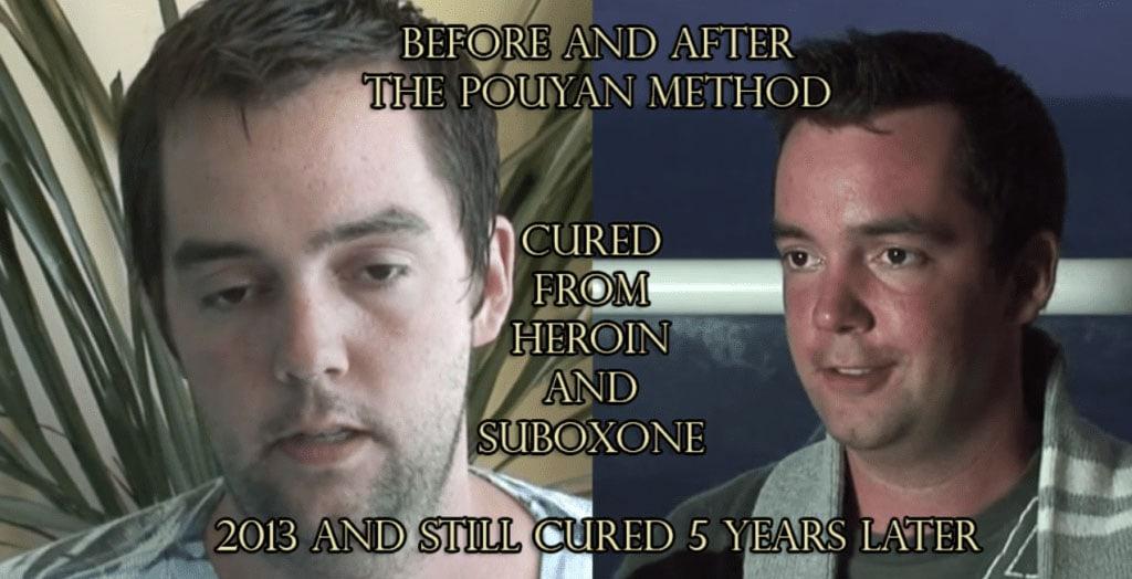 Heroin Addiction Treatment Holistic Sanctuary