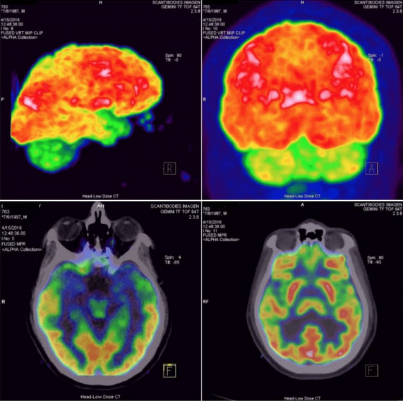 brain repair scans