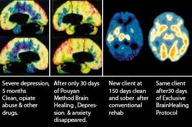 brain-scans-drug-rehab